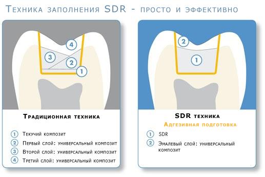 sdr пломбировочный материал - Cхемы и описания на каждый день.